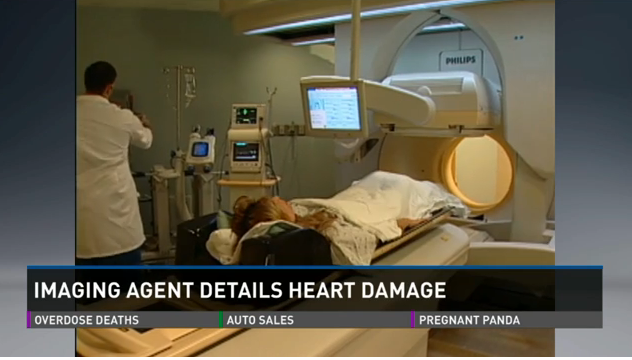 Imaging agent identifying heart damage